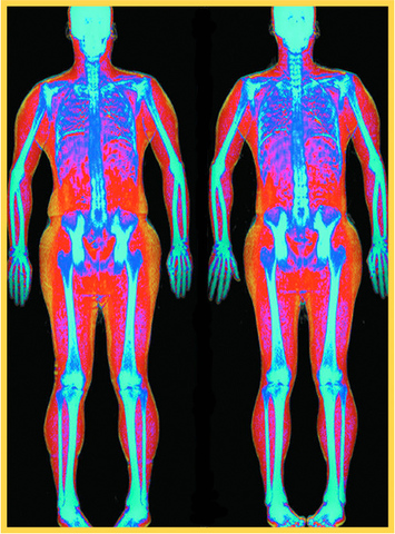 Dexa Scan Imaging